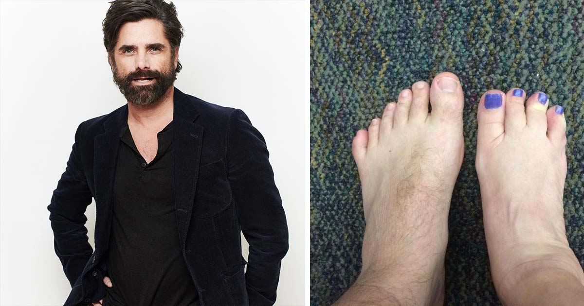 55 Celebrities Who Have An Unusual Body Part